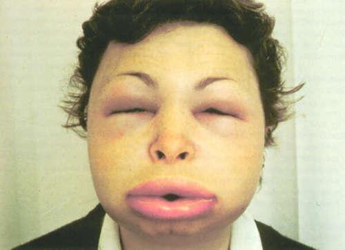 Женщина с отёком Квинке на лице