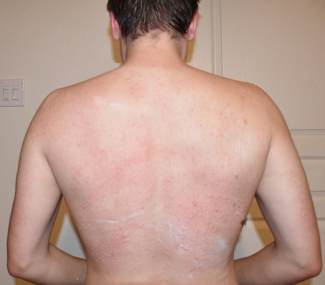 Симптомы во время аллергии на имбирь