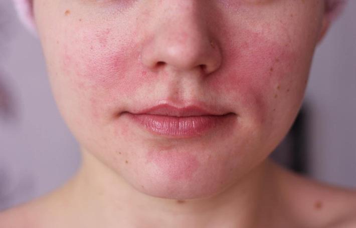 Покраснение на коже во время аллергии на свеклу