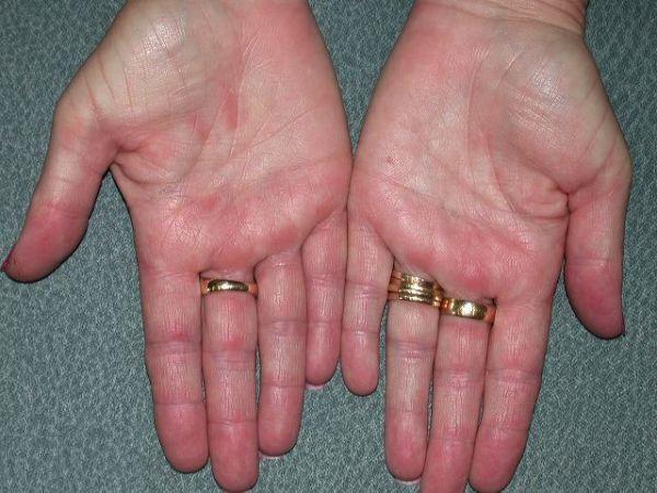 Отек Квинке во время аллергии на чеснок