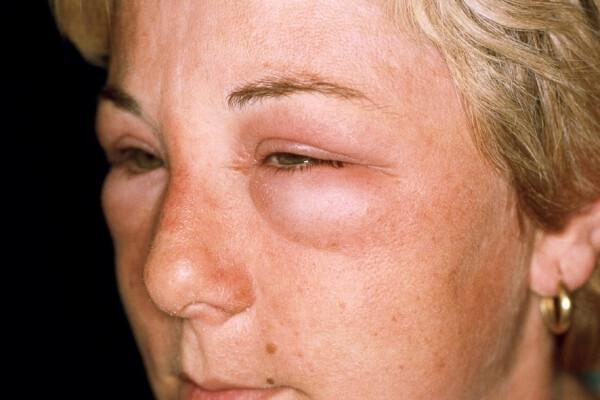 Отек Квинке во время аллергии на имбирь