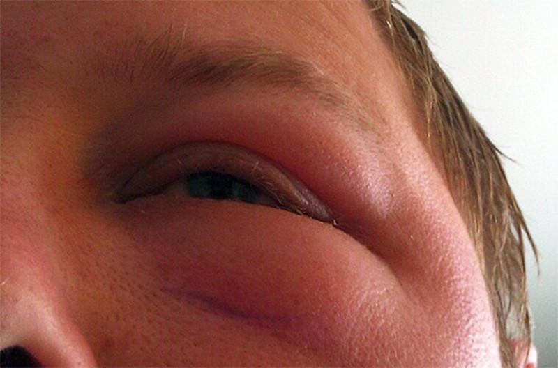 Отек Квинке во время аллергии на подсолнечное масло