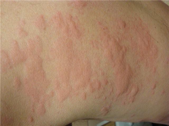Симптом, проявляющийся во время аллергии на чай