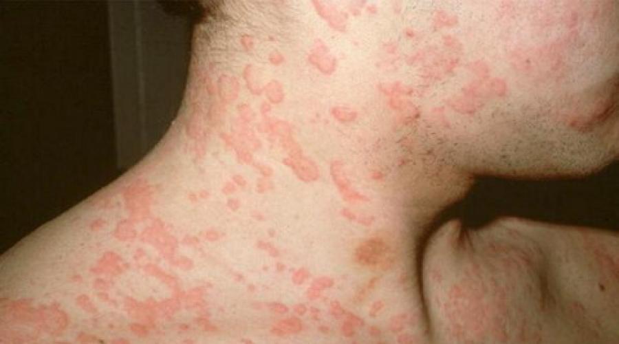 Покраснение на коже во время аллергии на кофе