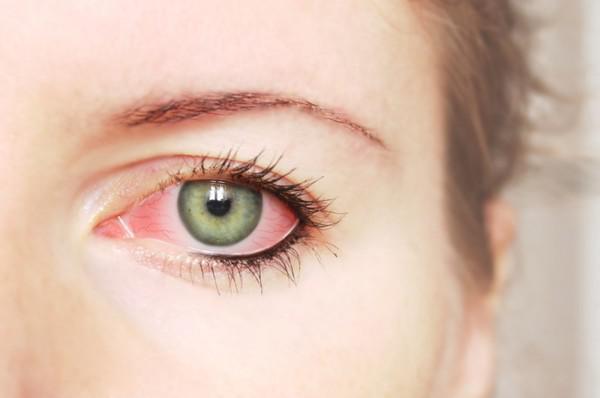 Покраснение глаз у женщины